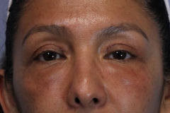 JO after brow susp and upper eyes (1)