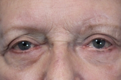 Pt 1 baggy eyes after surgery (2)