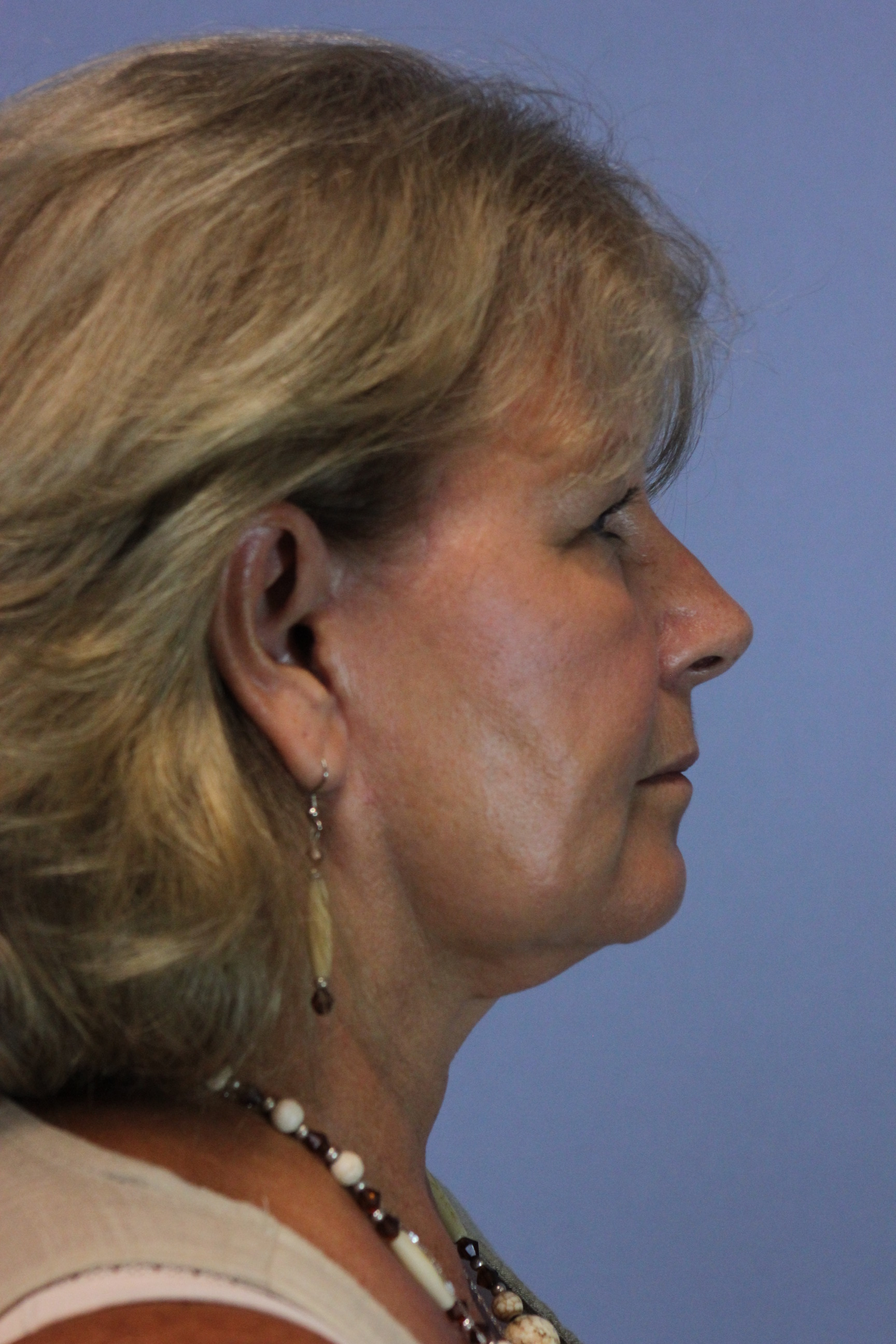 After-neck-lift