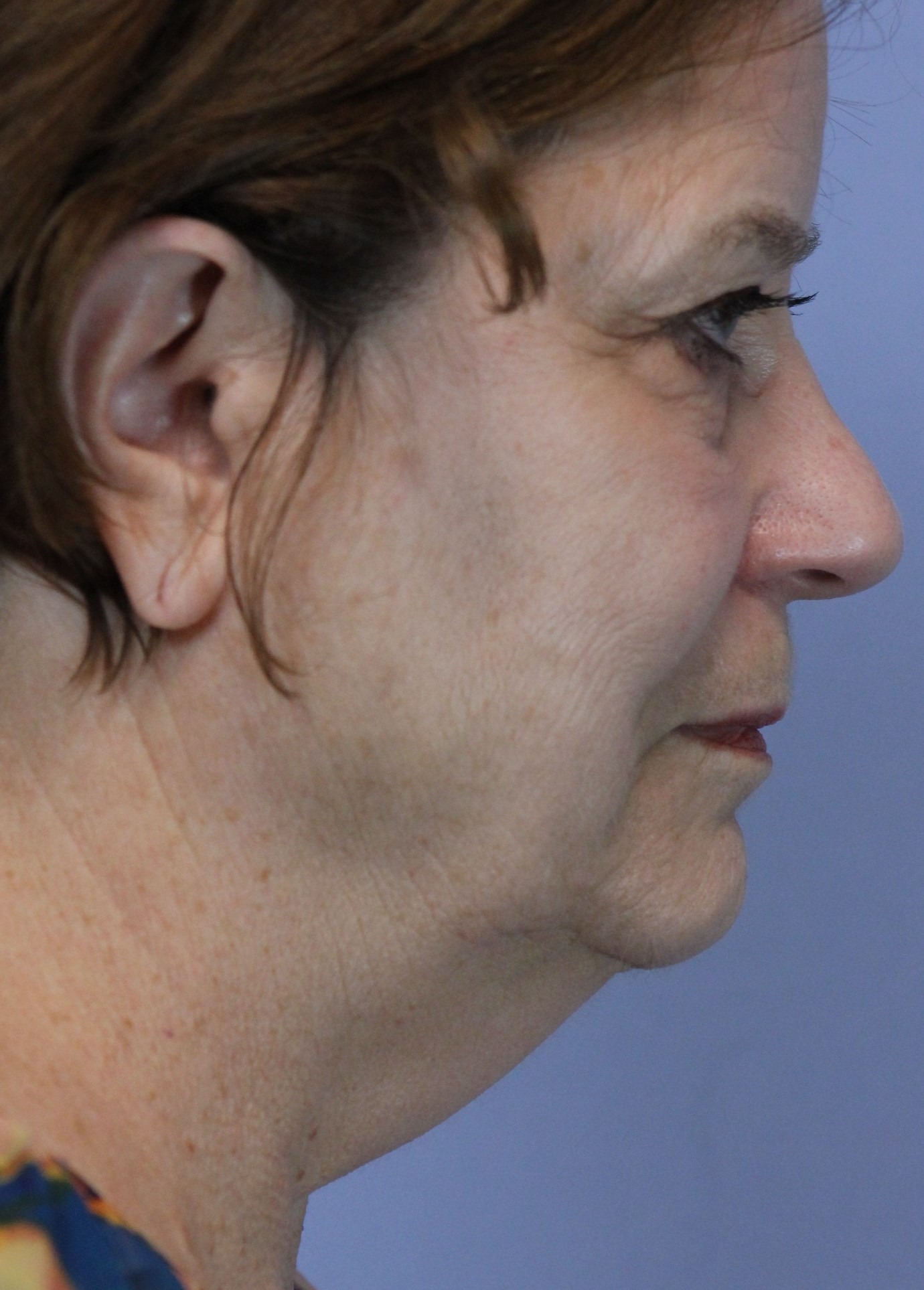 sagging-neck-before-surgery