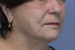 After face lift (2)