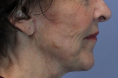 Face lift and laser after