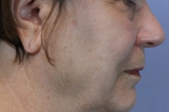 sagging neck before surgery