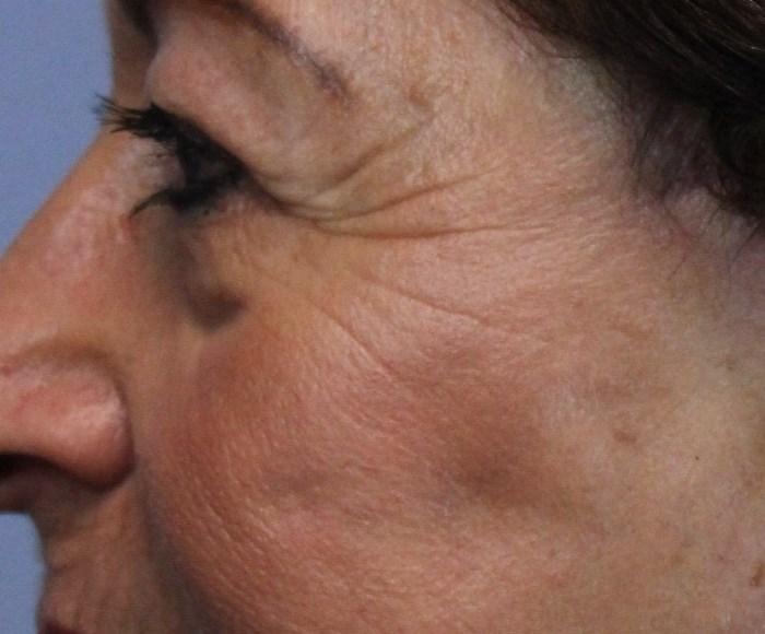 Pt 1 after laser face
