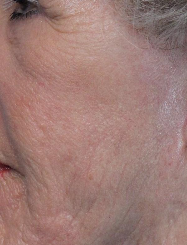 Pt 5 after laser face