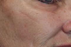 Pt 4 after laser face