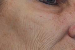 Pt 4 before laser face