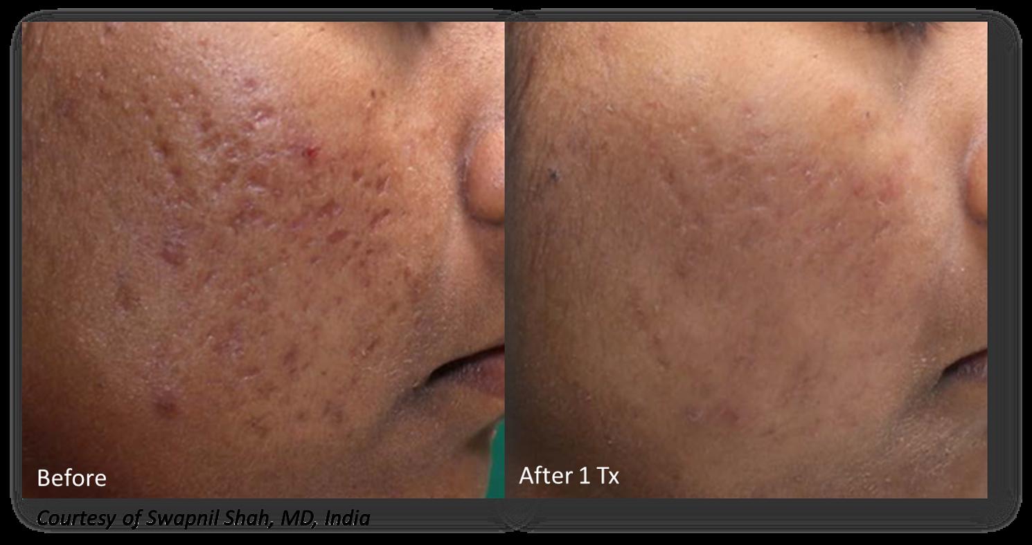 Micro Needling in San Antonio with RF  Intelligent anti- aging