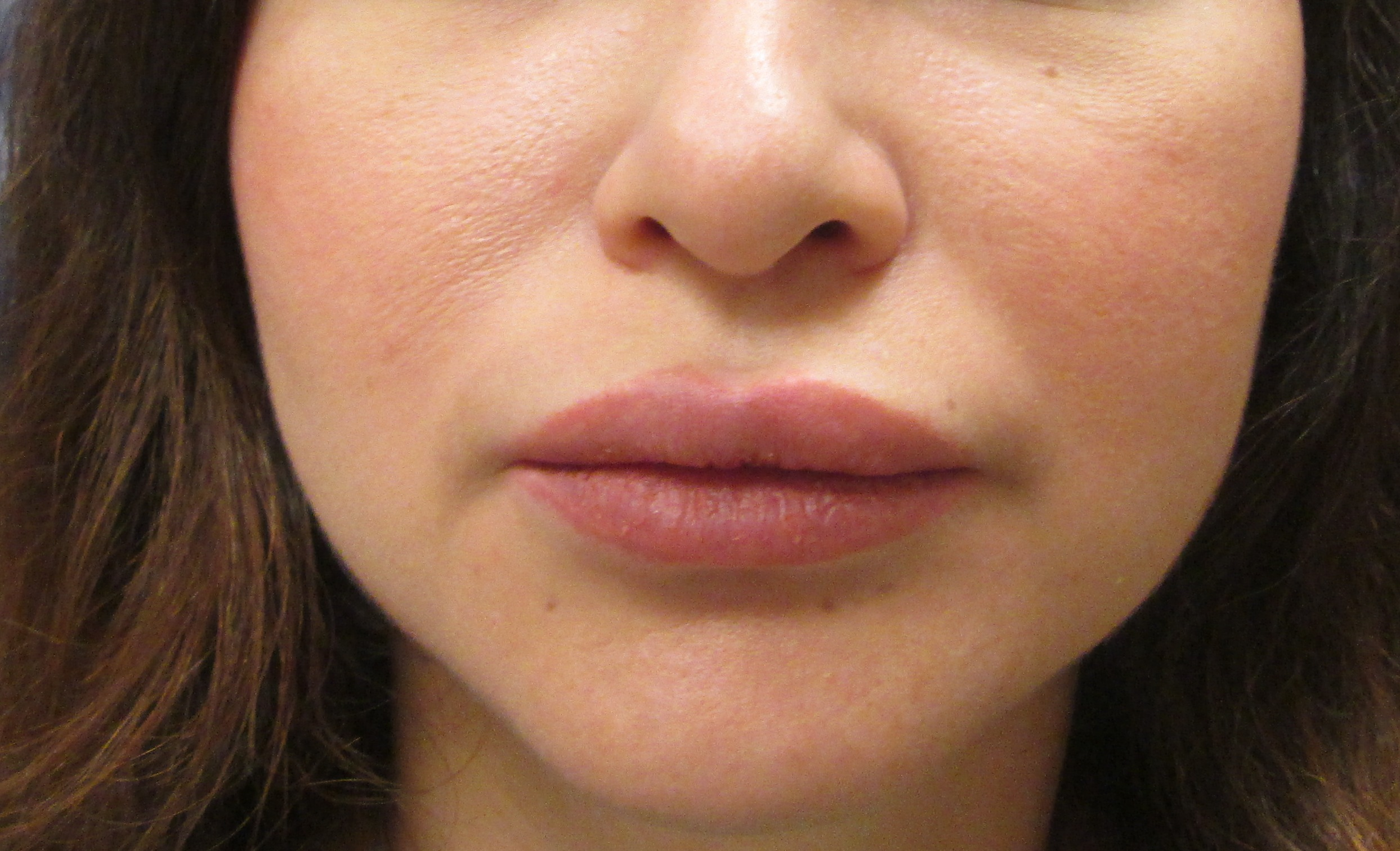 Post op lips cropped