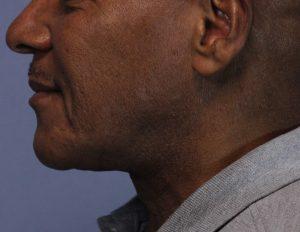 Pt 1 after laser lipo neck