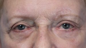 Pt 1 baggy eyes before surgery (2)