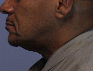 Pt 1 before laser lipo neck