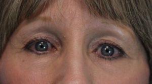 Pt 2 wrinkles under eyes after laser (1)