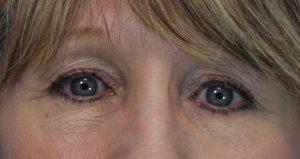 Pt 2 wrinkles under eyes after laser (2)