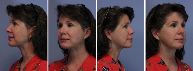 face-lift-post-female