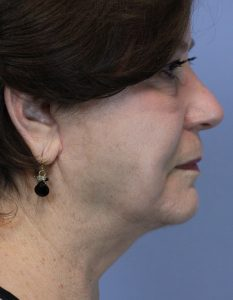 After sagging neck lift